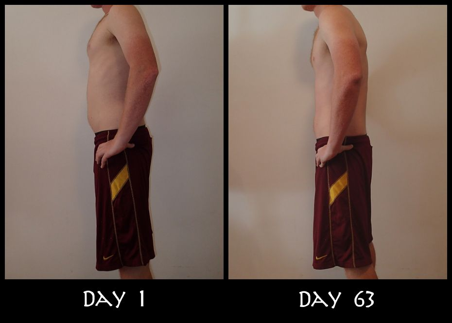 My Insanity Before And After Side Pictures